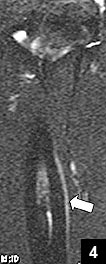 Figure 4: STIR coronal MRI showing no significant change in appearance of periosteal reaction and bony edema from 5 weeks previous