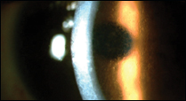 Figure 3. Slit lamp view of a patient's preoperative corneal appearance with Reis-Bucklers corneal dystrophy.