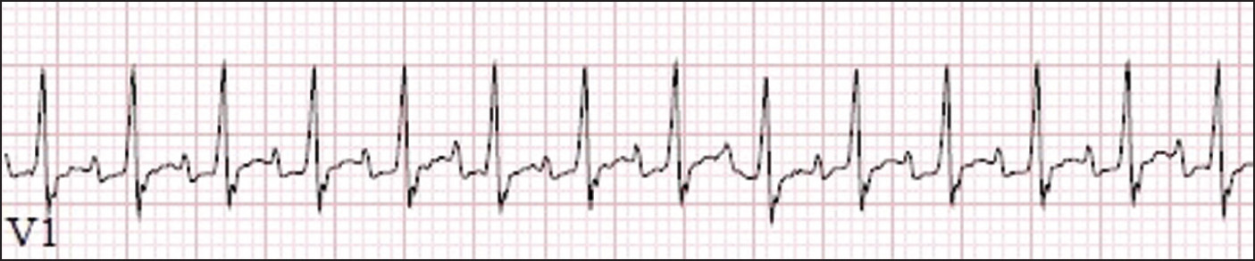 Electrocardiogram demonstrating narrow complex tachycardia in precordial lead V1, with a rate of 231 beats per minute and QRS interval of 68 milliseconds.