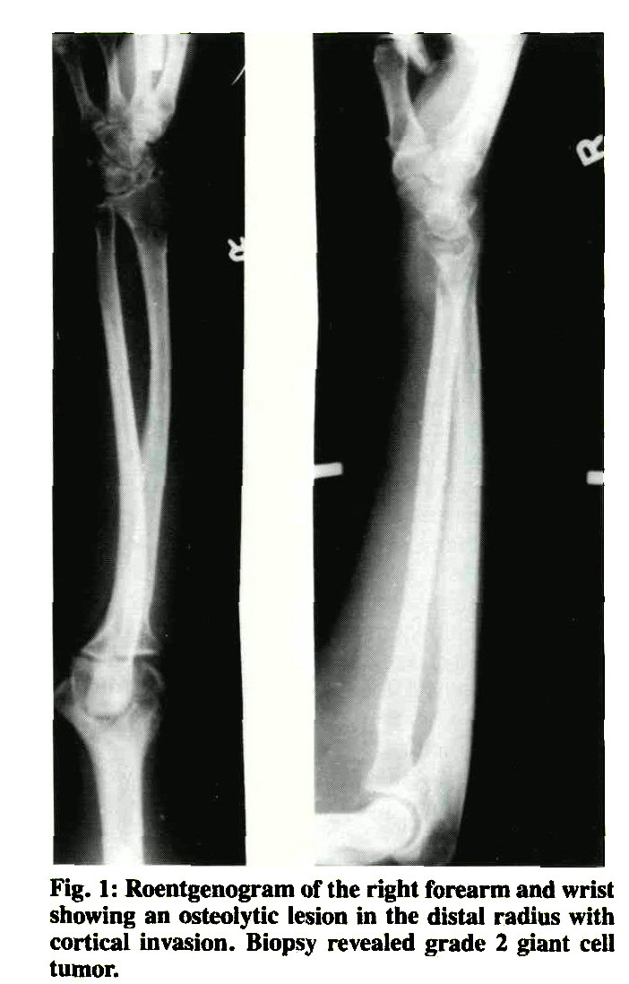 Fig     Roentgenogram of the right forearm and wrist showing an osteolytic lesion in