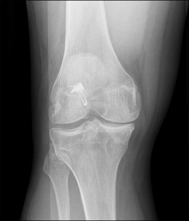 BLOG: Hardware complications in revision ACL reconstruction