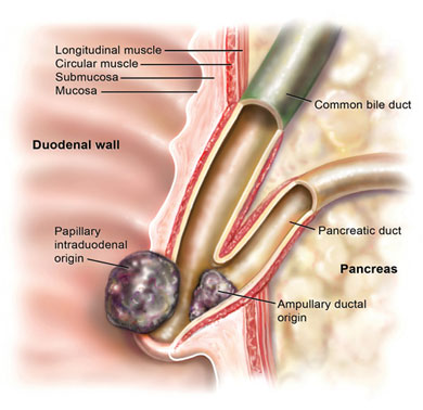 ... ampulla or cancer rising from the intra-ampullary portion of the Sphincter Of Oddi Ampulla Of Vater