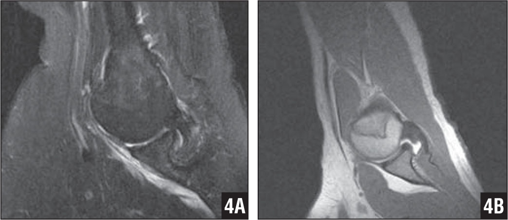The Abduction External Rotation Aber View For Mri Of The