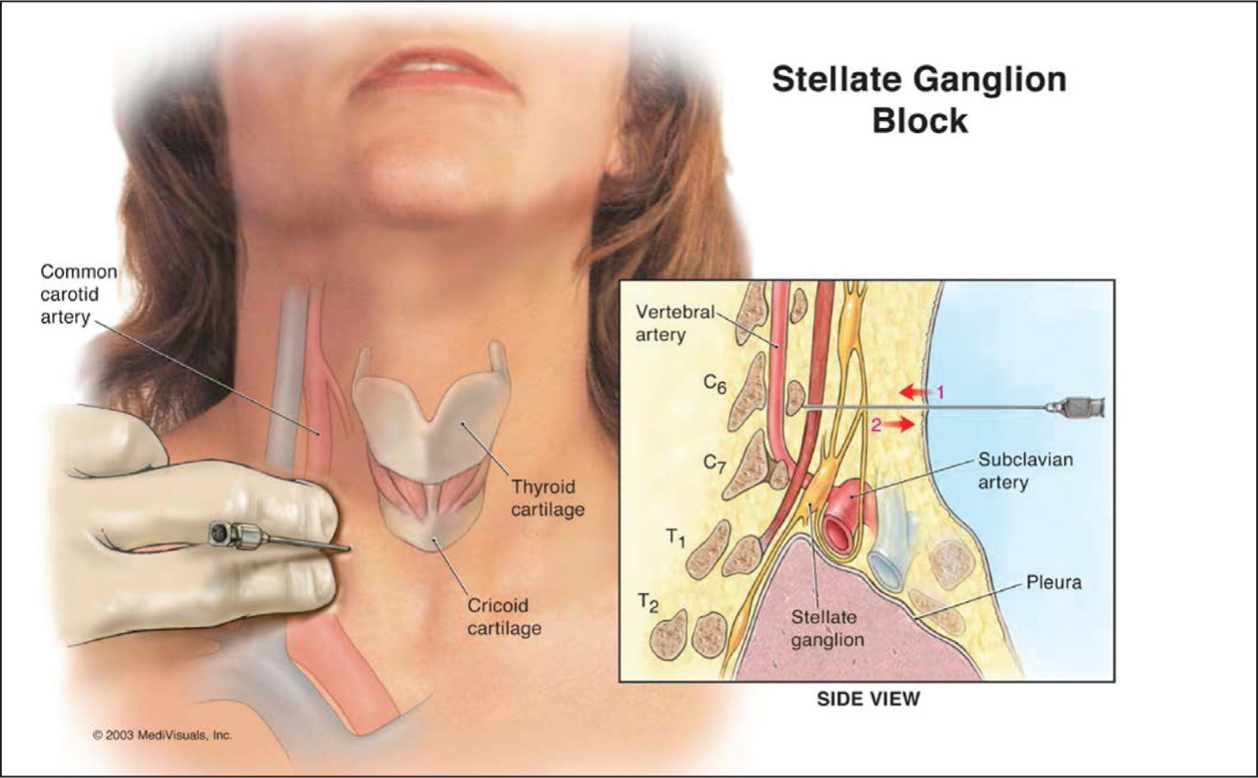 Figure 1. Stellate ganglion block technique.Image courtesy of Maryam