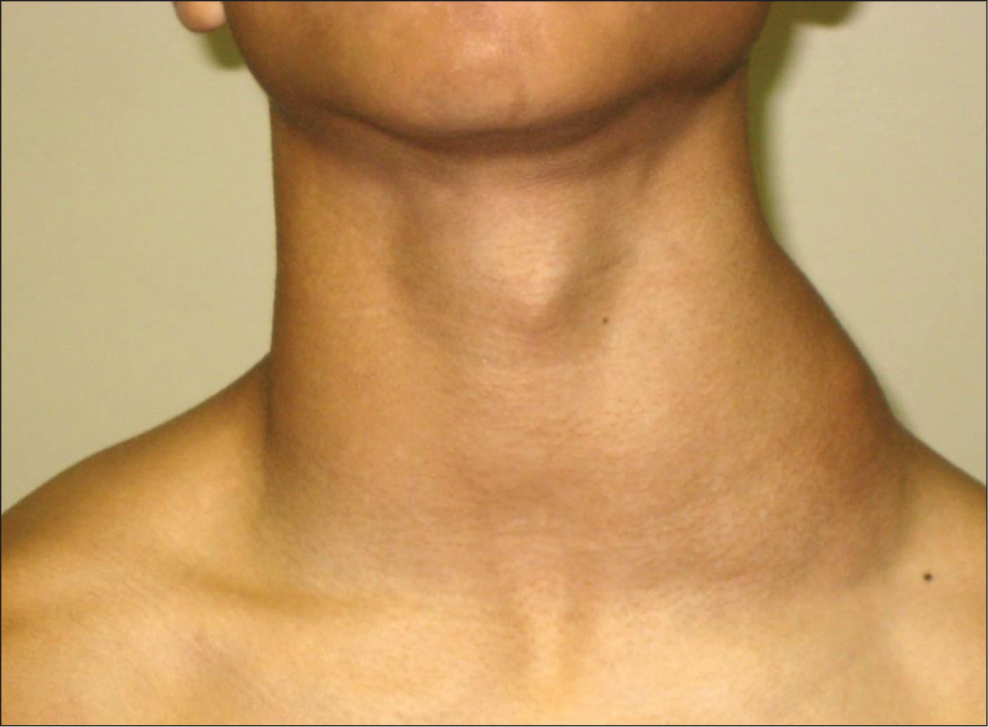 Herpes Simplex and Sore Throat - Treato