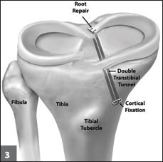 posterior root repair of the medial meniscus