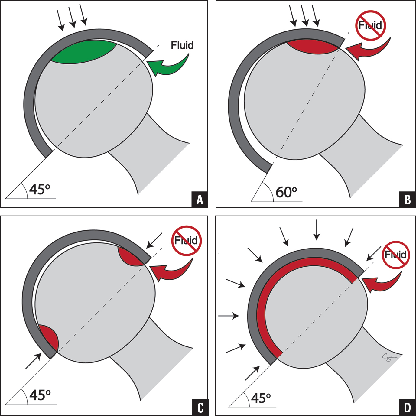 A polar bearing leads to proper bedding-in and low steady-state wear as well as fluid-film lubrication (A). Increasing acetabular component abduction/inclination results in edge loading and prevents fluid-film lubrication, increasing adhesive wear (B). An equatorial bearing is created when a thin-walled monoblock acetabular component is deformed at the rim, resulting in friction, seizing, and increased wear (C). A total contact bearing is created when there is no radial clearance, resulting in friction, seizing, and increased wear (D). Black arrows indicate the area of contact between the metal head and the acetabular component. Green and red arrows indicate the clearance available for fluid ingress and egress to establish fluid-film lubrication.
