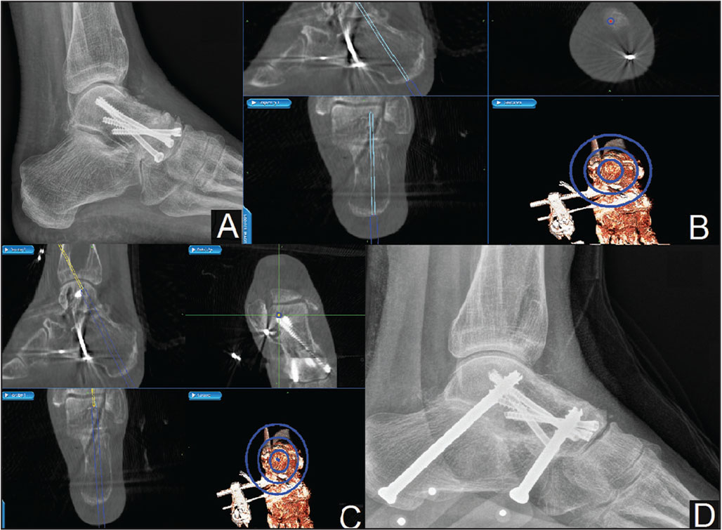 Percutaneous arthrodesis of the subtalar joint under 3-dimensional computed tomography–guided navigation. Lateral radiograph of the ankle and foot showing subtalar arthritis and previously fused talonavicular joint (A). Navigation screenshots showing the target trajectory and screw placement across the subtalar joint (B, C). The light blue rectangle shows the target trajectory of the screw, while the dark blue rectangle shows the initial position of the screw with the apex of the rectangle showing the tip of the screw lying over the cortex of the calcaneum (B). The dark blue rectangle shows the final position of the screw, while the yellow rectangle shows the further trajectory of the screw and is to be avoided (C). Immediate postoperative radiograph showing satisfactory position and length of screws across the subtalar joint (D).