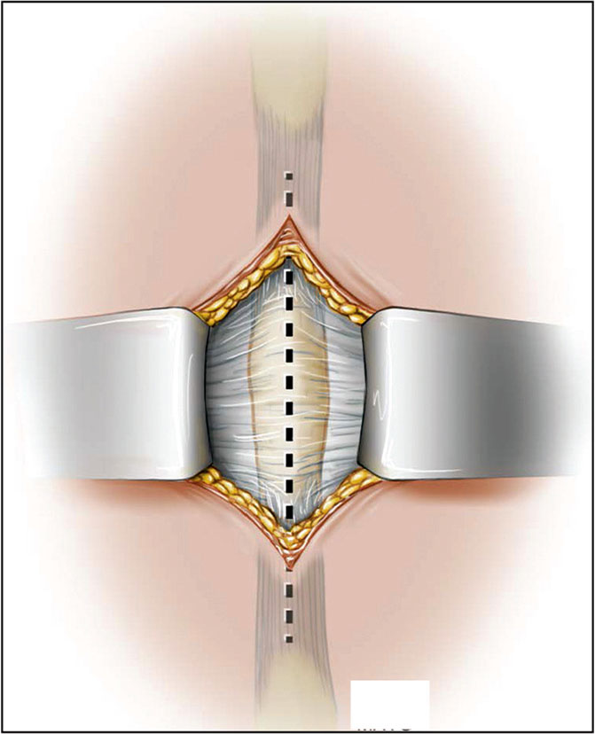 Subcutaneous dissection and identification of the thoracodorsal fascia. (Used with permission of the Mayo Foundation for Medical Education and Research, all rights reserved.)
