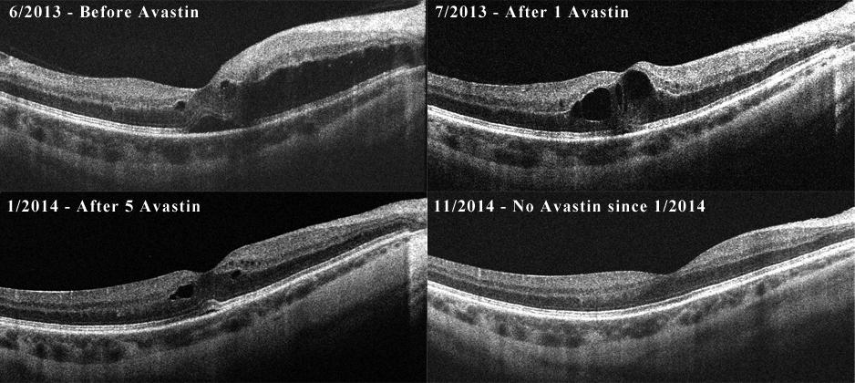 OCT series of patient in Figure 3. He received a total of six bevacizumab injections within the first 6 months of his diagnosis. His last injection was in January 2014, and he has not had recurrent macular edema through last follow-up in November 2014.